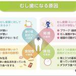 ムシ歯のメカニズムと予防法について