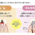 どうして歯の治療は長くかかるのか?